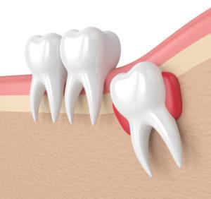 qu 39 est ce qu 39 une dent incluse et en quoi consiste la d sinclusion dentaire. Black Bedroom Furniture Sets. Home Design Ideas